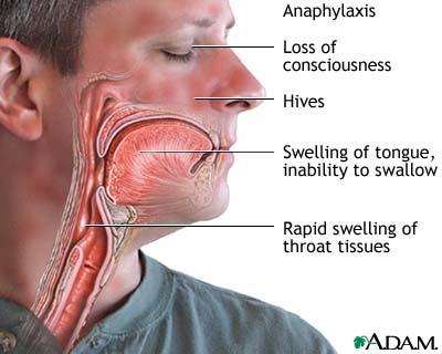 AnaphylaxisShock