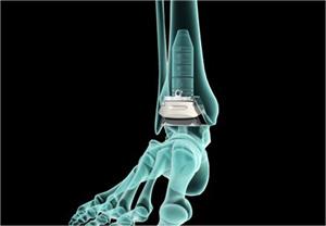 INBONE® Total Ankle System